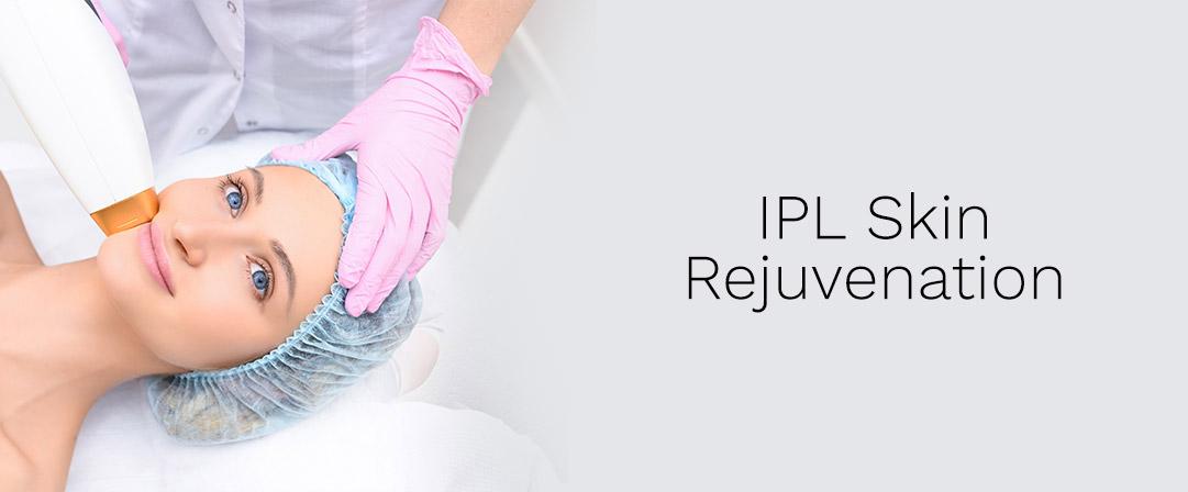 ipl-laser-rejuvenation-surrey